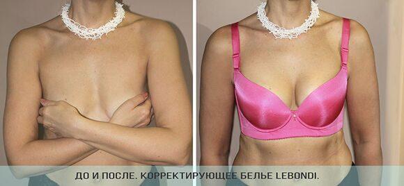 До и после_бюстгальтер пуш-ап LEBONDI_Web